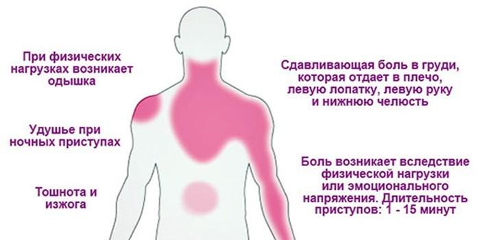 Локализация болей и симптоматика