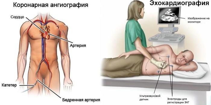 Коронарная ангиография и эхокардиография