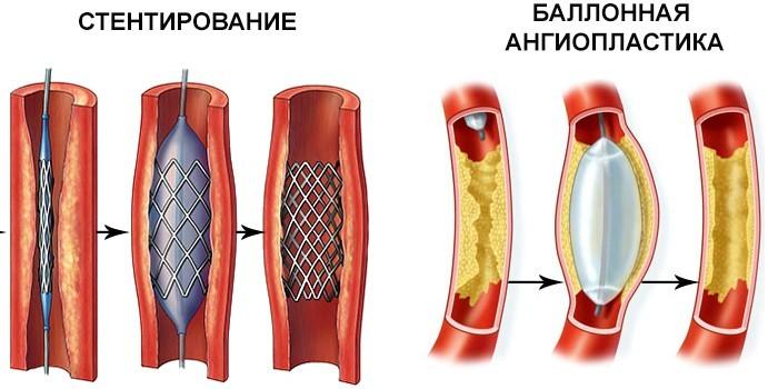 Стентирование и баллонная ангиопластика