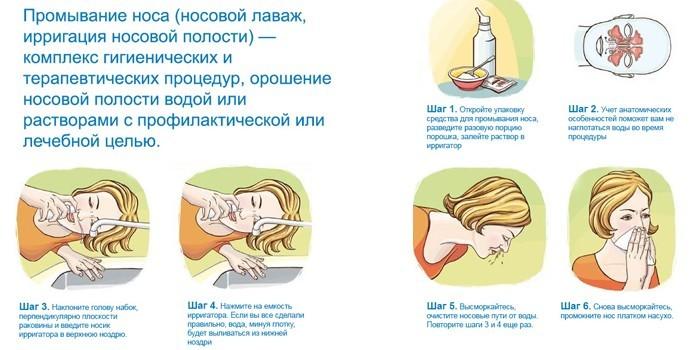 Пошаговая инструкция носового лаважа