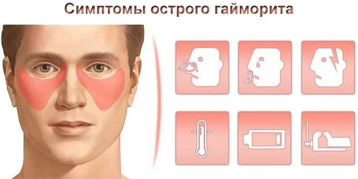Симптомы острой двухсторонней формы заболевания