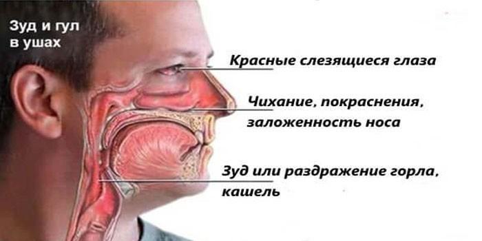 Общие признаки аллергической реакции