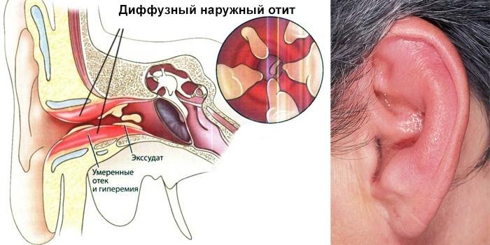 Диффузная форма болезни