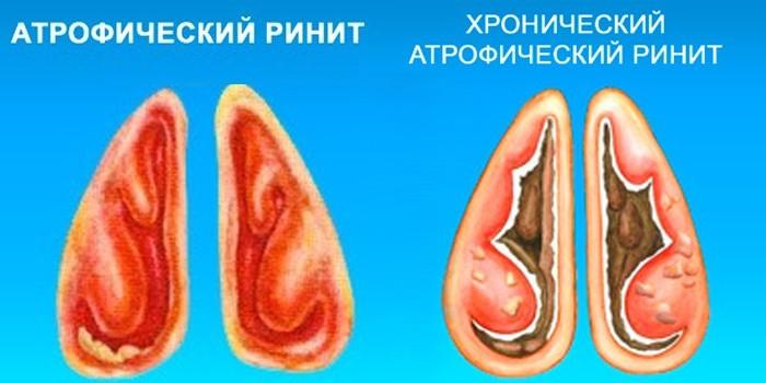 Острая и хроническая форма атрофического ринита