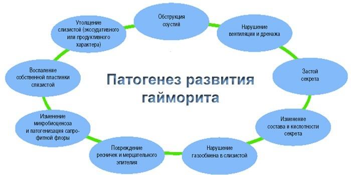 Патогенез развития гайморита