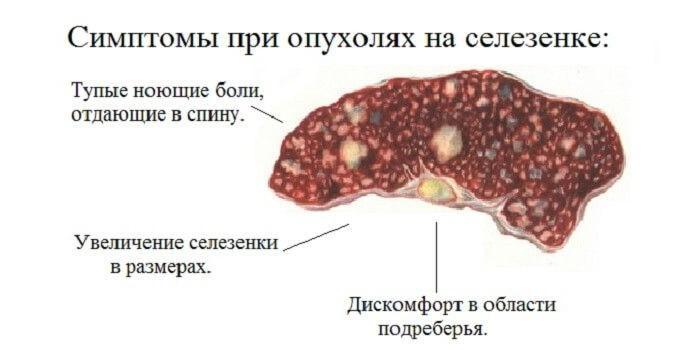 Симптомы опухолей на селезенке