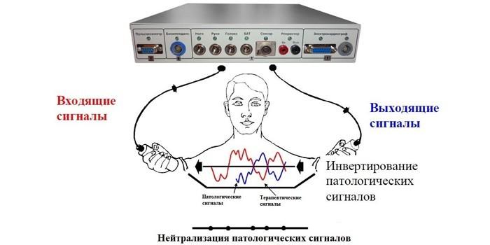 Нейтрализация патологических сигналов