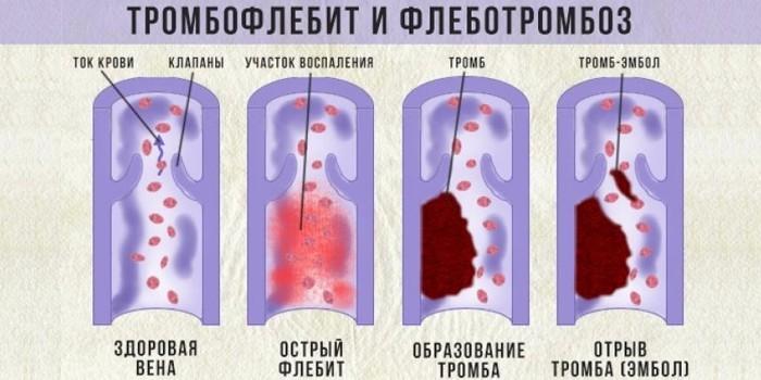 Тромбофлебит и флеботромбоз