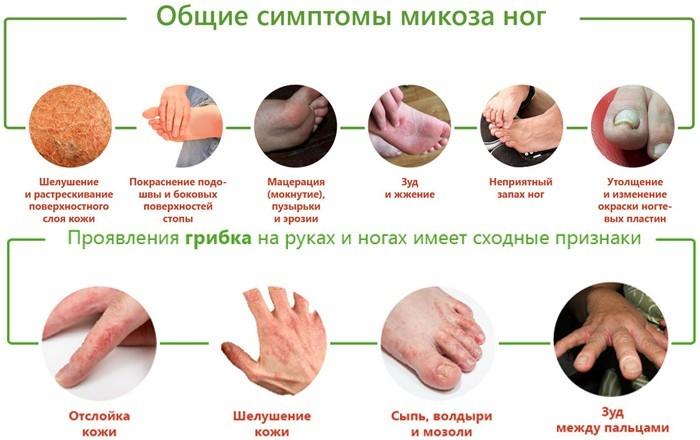 Симптоматика микозов рук и ног