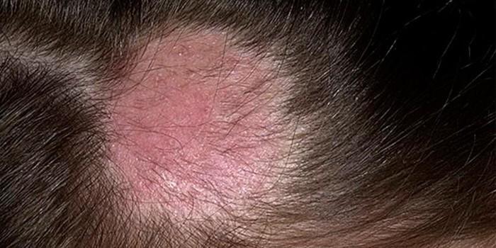 Стригущий лишай волосистой части головы