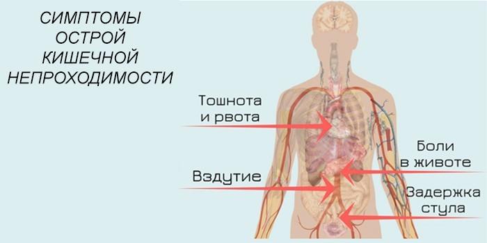 Первые симптомы острой формы