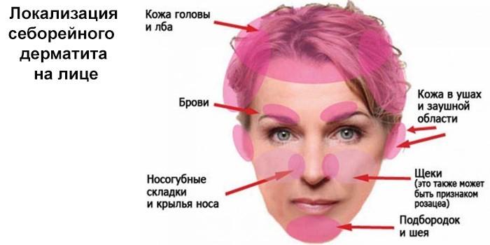 Локализация себорейного дерматита на лице