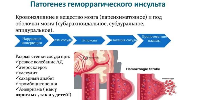 Патогенез геморрагического