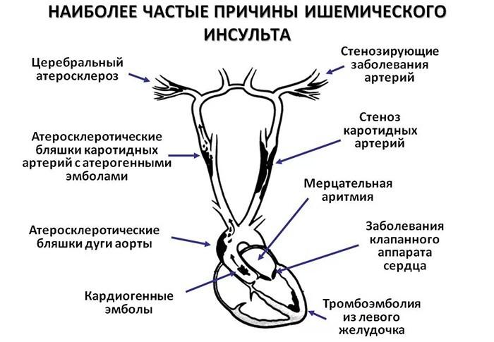 Причины ишемического