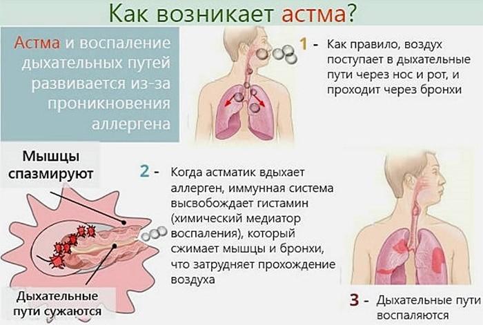 Как возникает заболевание