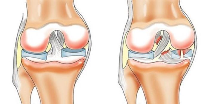 Изображение - Наружный разрыв связок коленного сустава 5802824-koleno-razriv2