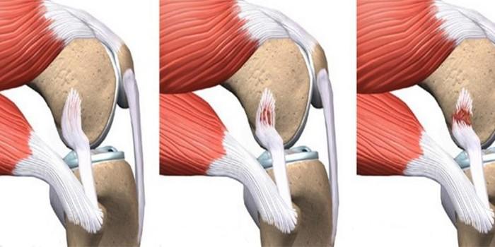 Надрыв связок коленного сустава лечение сроки почему болит тазобедренный сустав по ночам