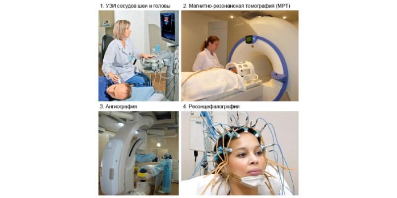 Методы диагностики при вертебро-базилярном синдроме