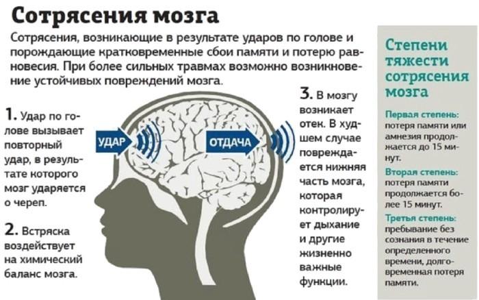 Причины и степени сотрясения мозга
