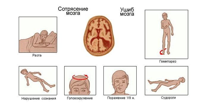 Симптомы сотрясения мозга сразу после травмы