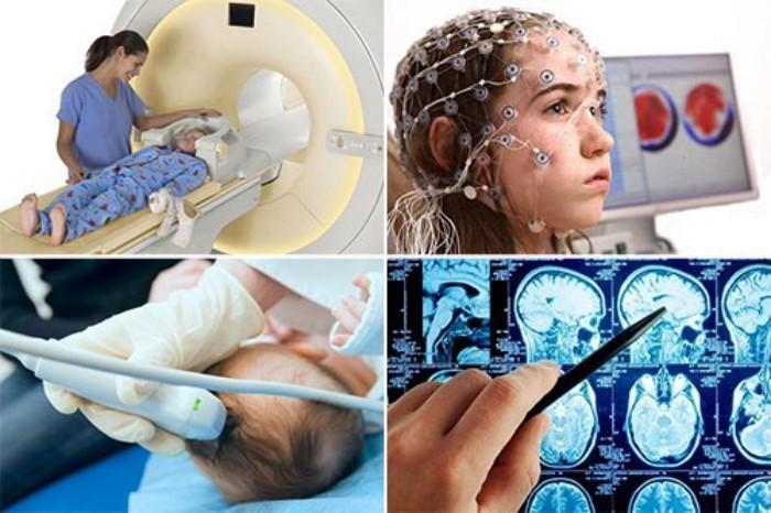 Методы диагностики головного мозга у ребенка после травмы