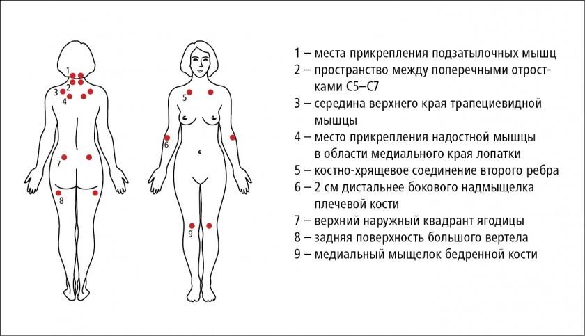 Болевые точки на теле при фибромиалгии на схеме