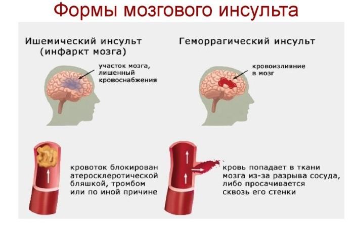 Формы мозгового инсульта