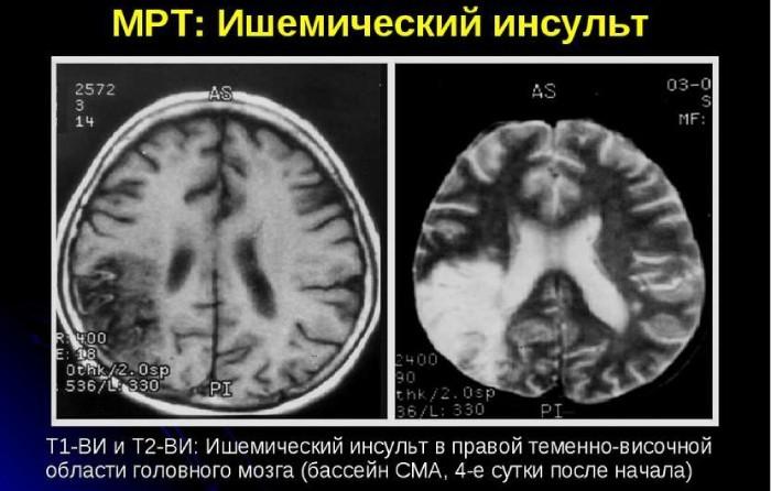 Ишемический инсульт на снимке МРТ