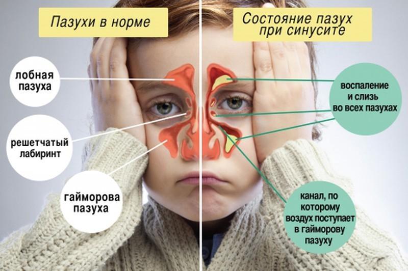 Детские пазухи при синусите