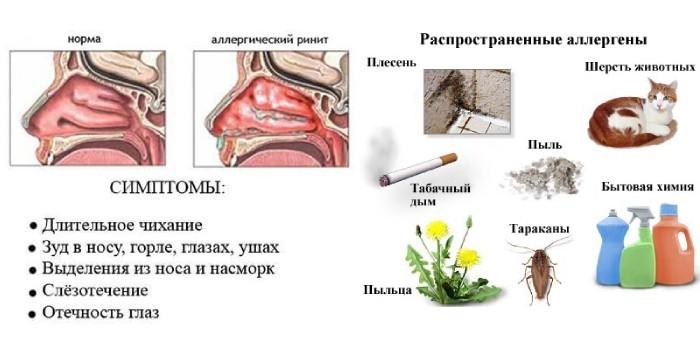 Симптомы аллергического ринита и аллергены