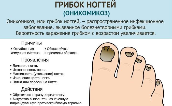 Причины и симптомы грибка ногтей