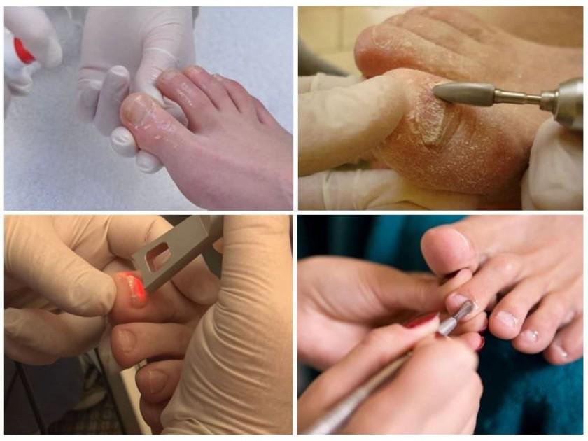 Методы лечения грибка ногтя