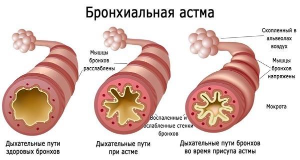 Бронхиальная астма на схеме