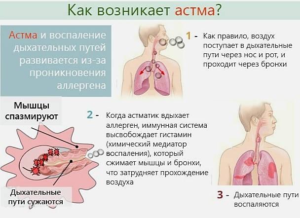 Возникновение астмы