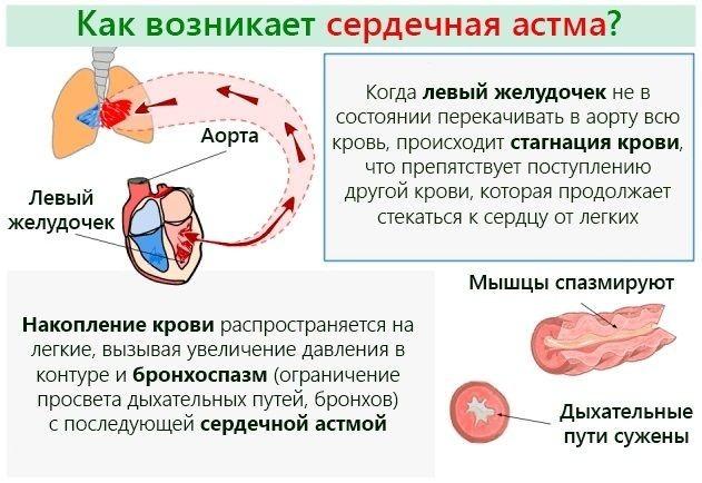 Возникновение сердечной астмы