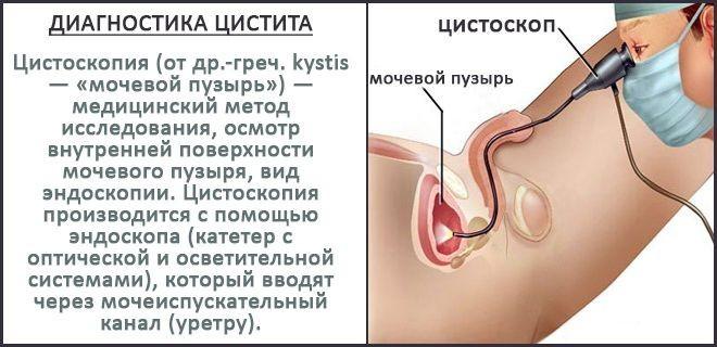 Цитоскопия для диагностики цистита