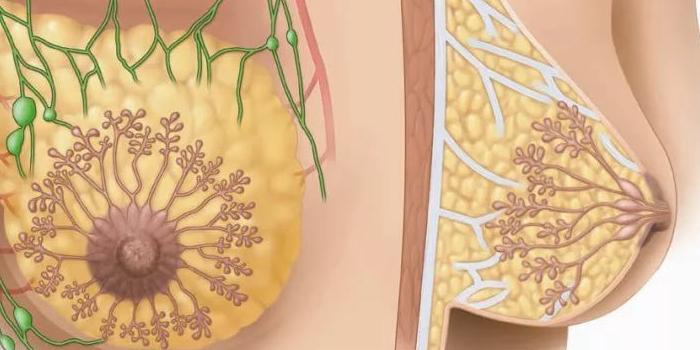 Схематичное изображение фибромы и фиброаденомы молочной железы