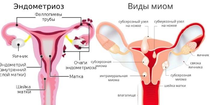 Эндометриоз и миома матки на схеме