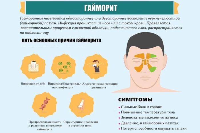 Симптомы и причины гайморита