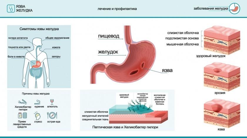 Язва желудка - причины, симптомы, лечение
