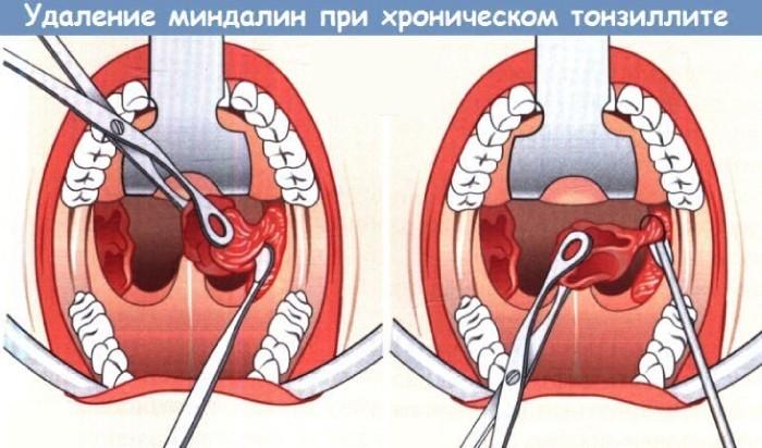 Удаление миндалин
