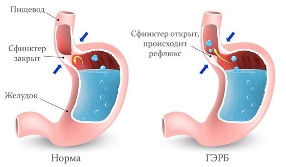 Гастроэзофагеальная рефлюксная болезнь - ГЭРБ на схеме