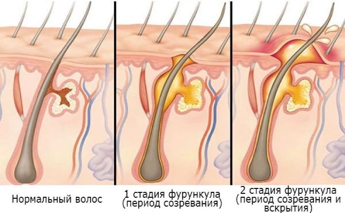 Механизм образования фурункула