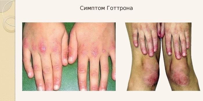 Симптом Готтрона