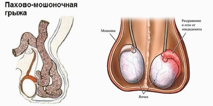 Противопоказания к медицинской стерилизации мужчин