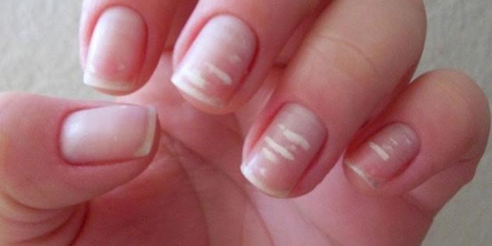 Проявления авитаминоза на ногтях