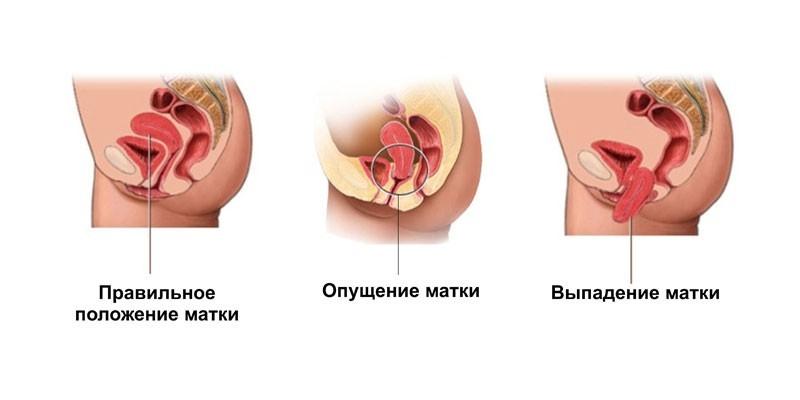 Нормальное и патологическое положение матки