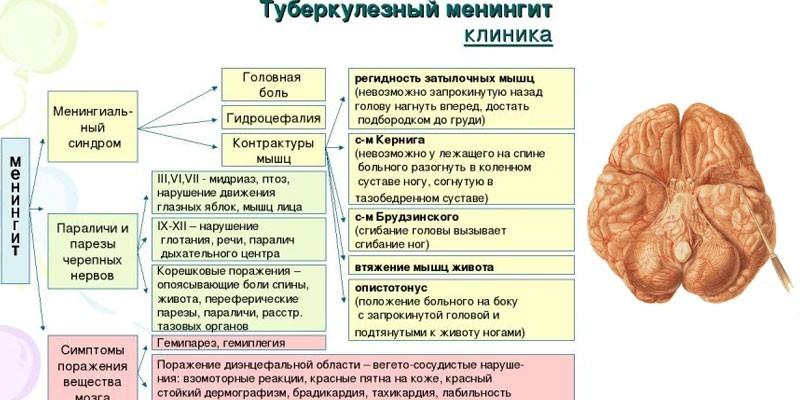 Клинические симптомы туберкулезного менингита