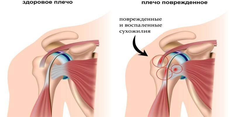 Субкоракоидальный бурсит плечевого сустава лечение