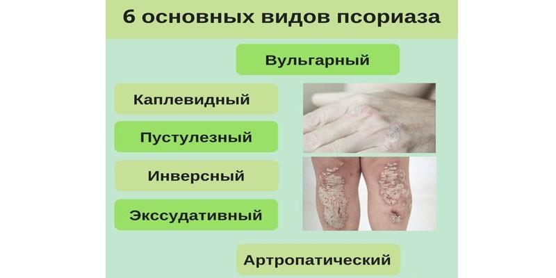 Признаки псориаза, первые признаки псориаза, фото и видео